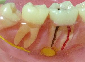 虫歯 神経 まで